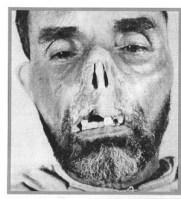 mutilation+alg%C3%A9rie.jpg