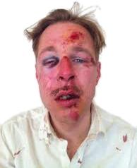 Le militant LGBT victimiste Néerlandais Wilfred De Bruijn